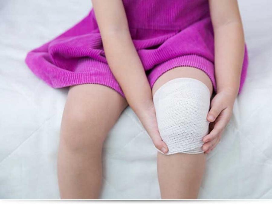 Чем обезболить ожог у ребенка?