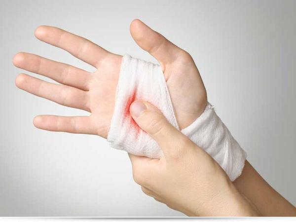 Как быстро остановить кровь при порезе?